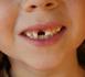 Campagne de sensibilisation bucco-dentaire : « Souriez, vous êtes bien protégés avec la MNT »